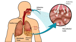prevention-of-malignant-pleural-mesothelioma-preview